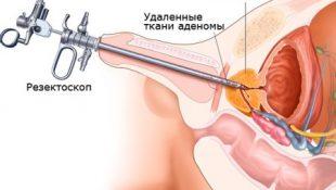 Восстановление потенции после лечения аденомы простаты
