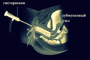 Оперативная гистероскопия