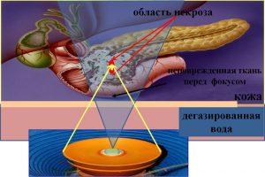 Принцип действия фокусированного ультразвука