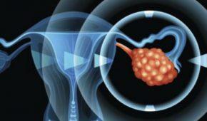 Андробластома яичника