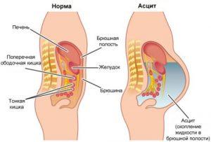 Асцит в брюшной полости