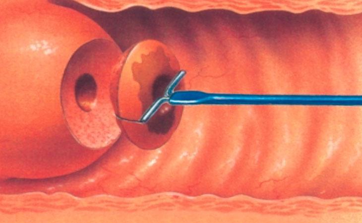 Биопсия шейки матки что делать до и после проведения процедуры