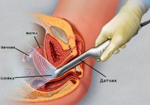 Гистероскопия маточной полости