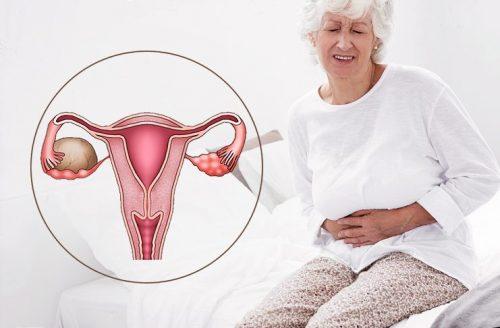 Мастопатия при климаксе причины симптомы лечение профилактика