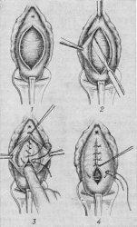 Кольпорафия