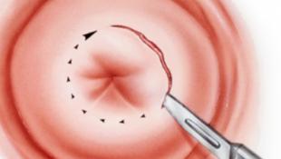Конхотомная биопсия