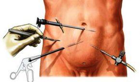 Лапароскопическая операция варикоцеле