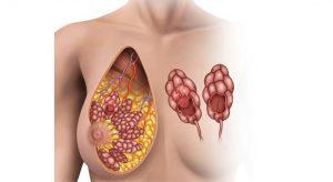 Проявление гиперпролактинемии