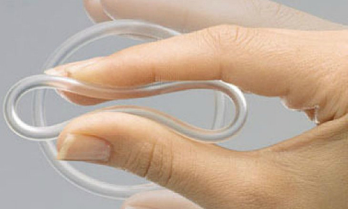 Гинекологическое кольцо при опущении матки