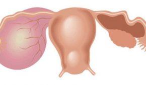 Муцинозная киста яичника