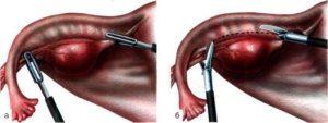 Овариэктомия у женщин