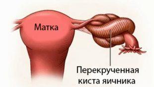 Перекручивание ножки кисты