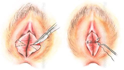 Кровотечение при эндометриозе маточное как остановить что делать лечение