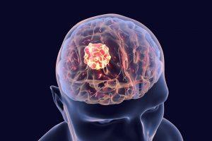 Некроз мозговых тканей
