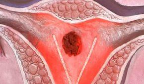 Рак матки 2 стадия