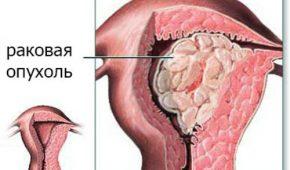 Раковая опухаль