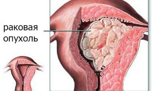 Раковая опухоль матки