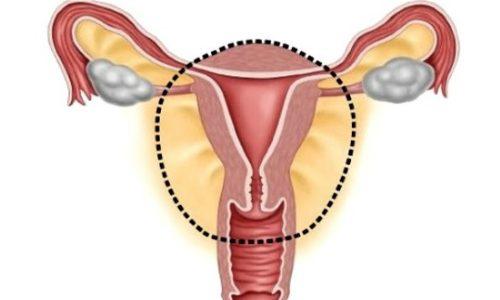 Удаление матки у женщин