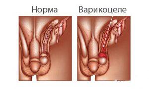 Проявление варикоцеле