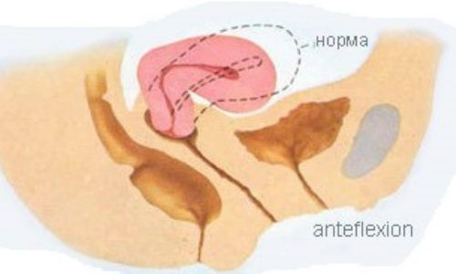 Anteflexio положение матки