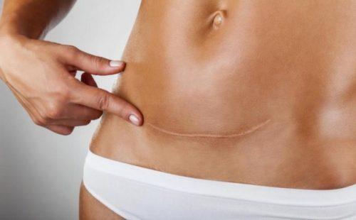 Развитие эндометрита после кесарева сечения