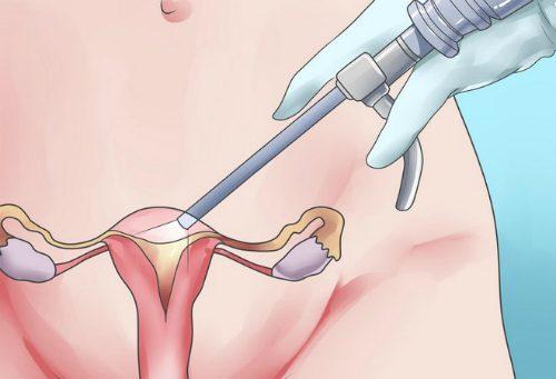 Метод гистероскопии при эндометриозе