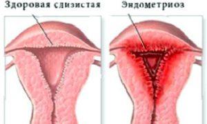 Проявление эндометриоза