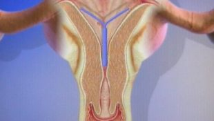 Схема лечения эндометриоза Миреной