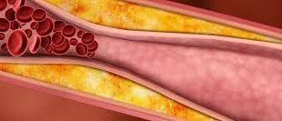 Снижение холестеринового показателя