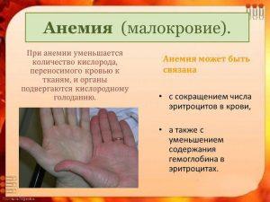 Проявление анемии
