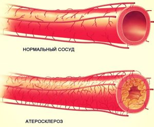 Противопоказано использование прибора при атеросклерозе