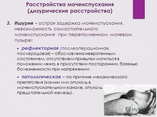 Дизурические расстройства