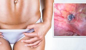 Эндометриоз после кесарева сечения