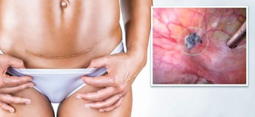 Развитие эндометриоза после кесарева сечения