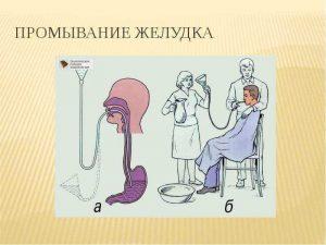 Процедура промывания желудка