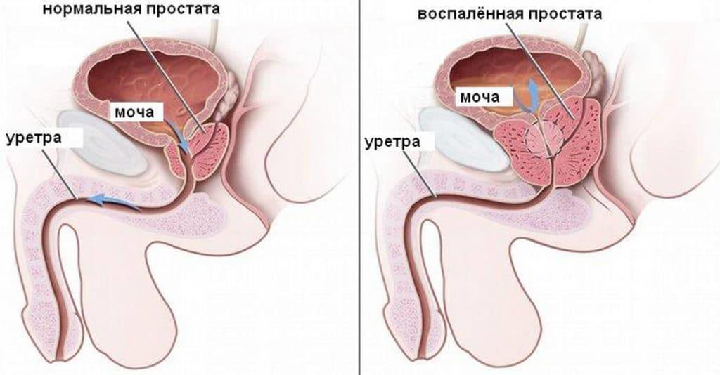 Химический простатит уретрит как причина простатита