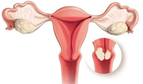 Образование карциномы in situ шейки матки