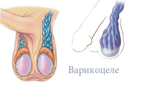 Возникновение рецидива варикоцеле