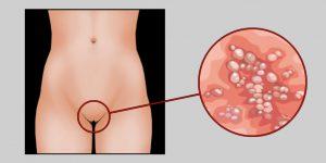 Признаки сифилиса
