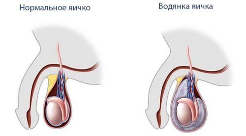 Сравнение нормального положения яичка и при водянке