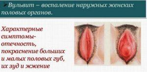 Проявления вульвита