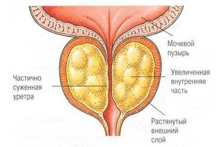 Атрофия предстательной железы