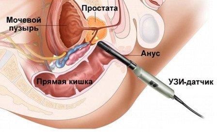 Ректальное исследование предстательной железы