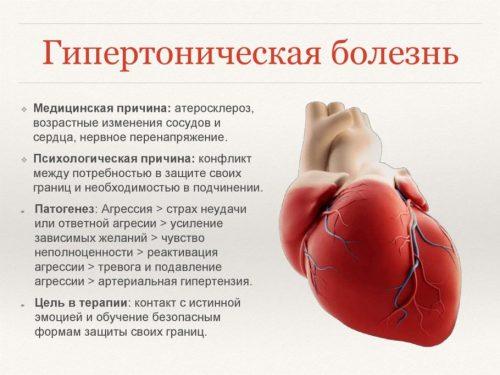 Гипертоническая болезнь
