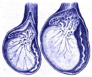 Гипоксия яичка