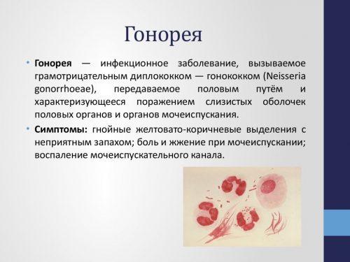 Симптомы гонореи