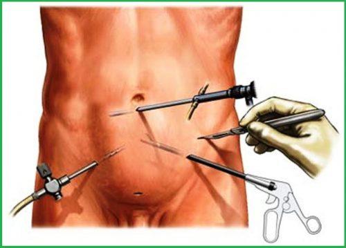 Лапароскопическая герниопластика