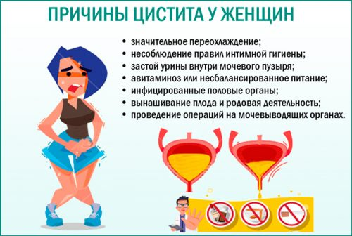 Причины цистита у женщин