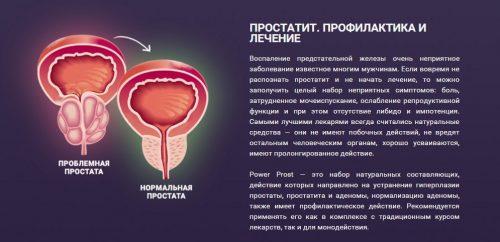 Определение простатита