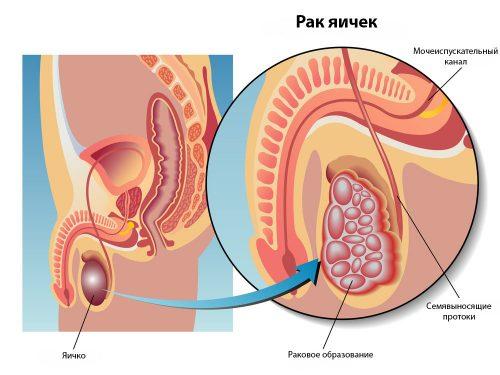Проявление рака яичек